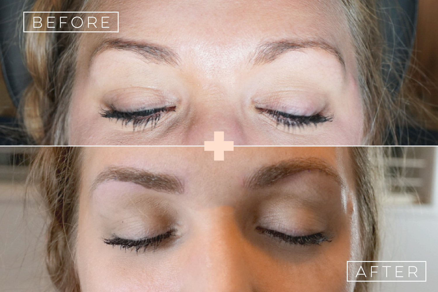 before+after-emily-1500x1000.jpg