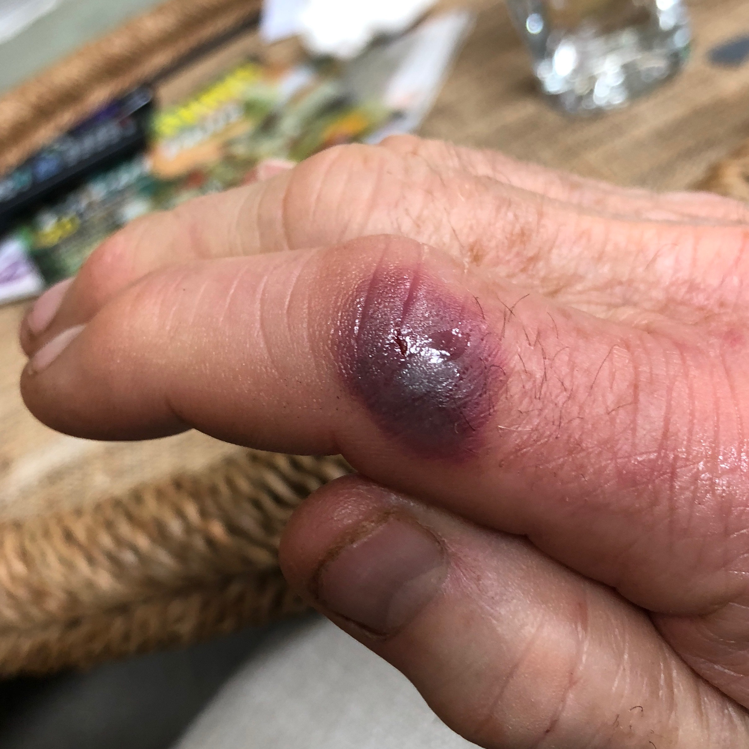 This is what my butt-ugly index finger looked like after it was snared by the teeth of the butt-ugly monk fish. Antibiotics were prescribed, but I was placed on sick-leave for 4 days.