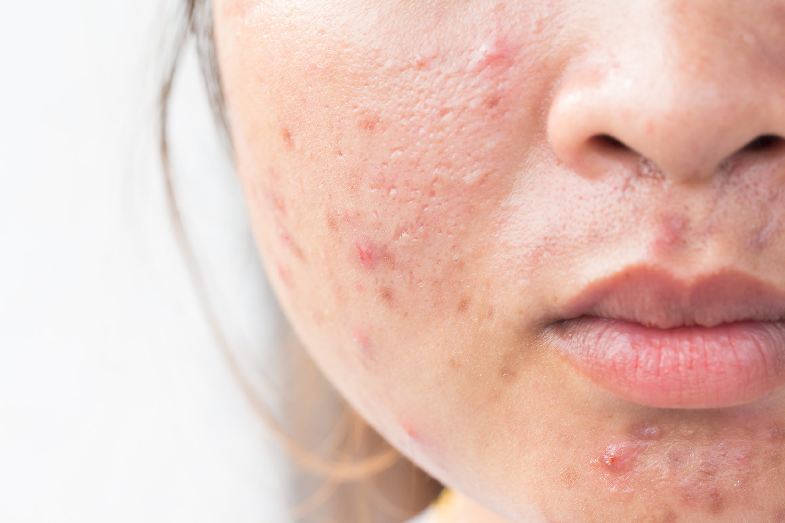 close up of a patient's face with acne