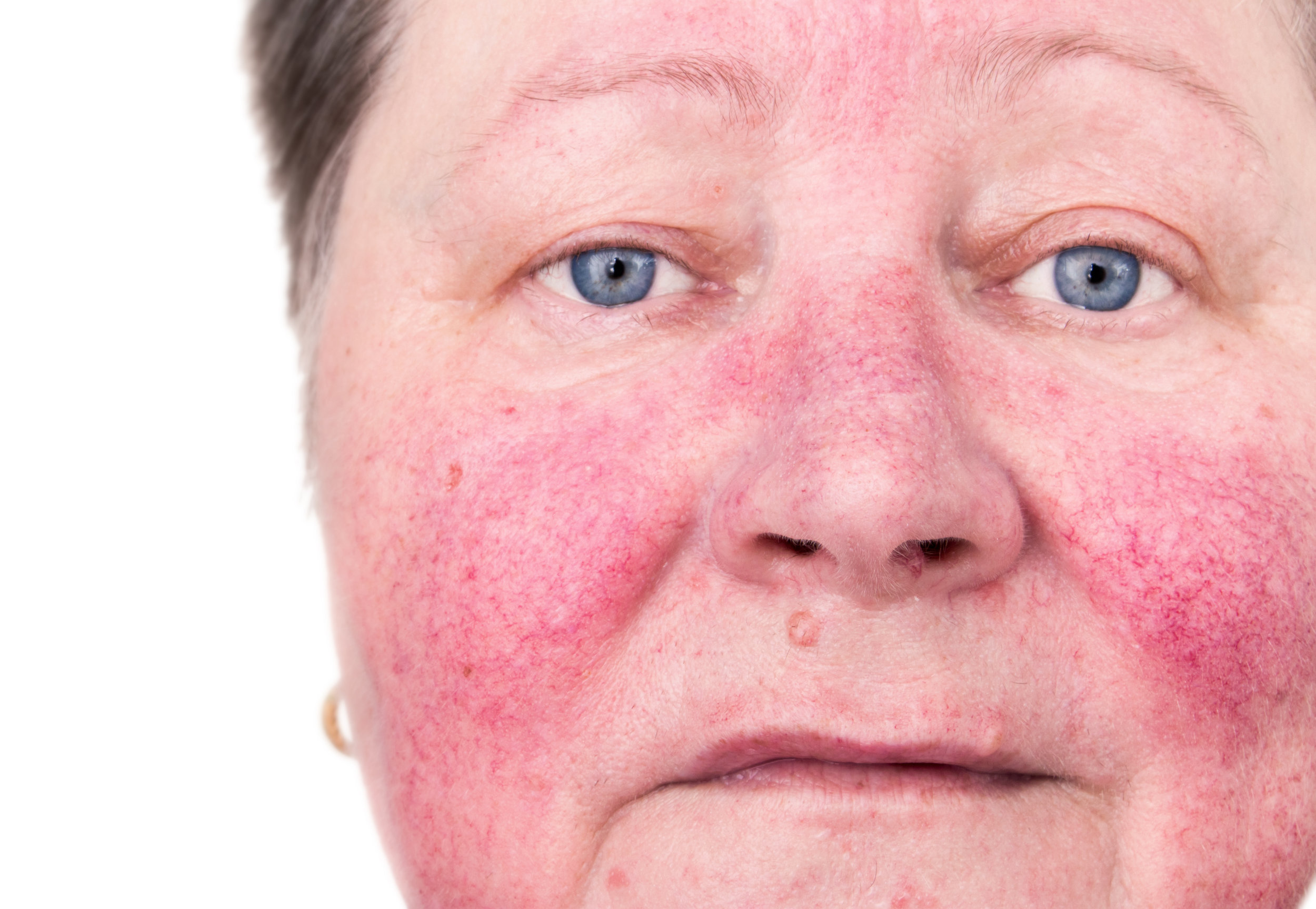 a patient with rosacea