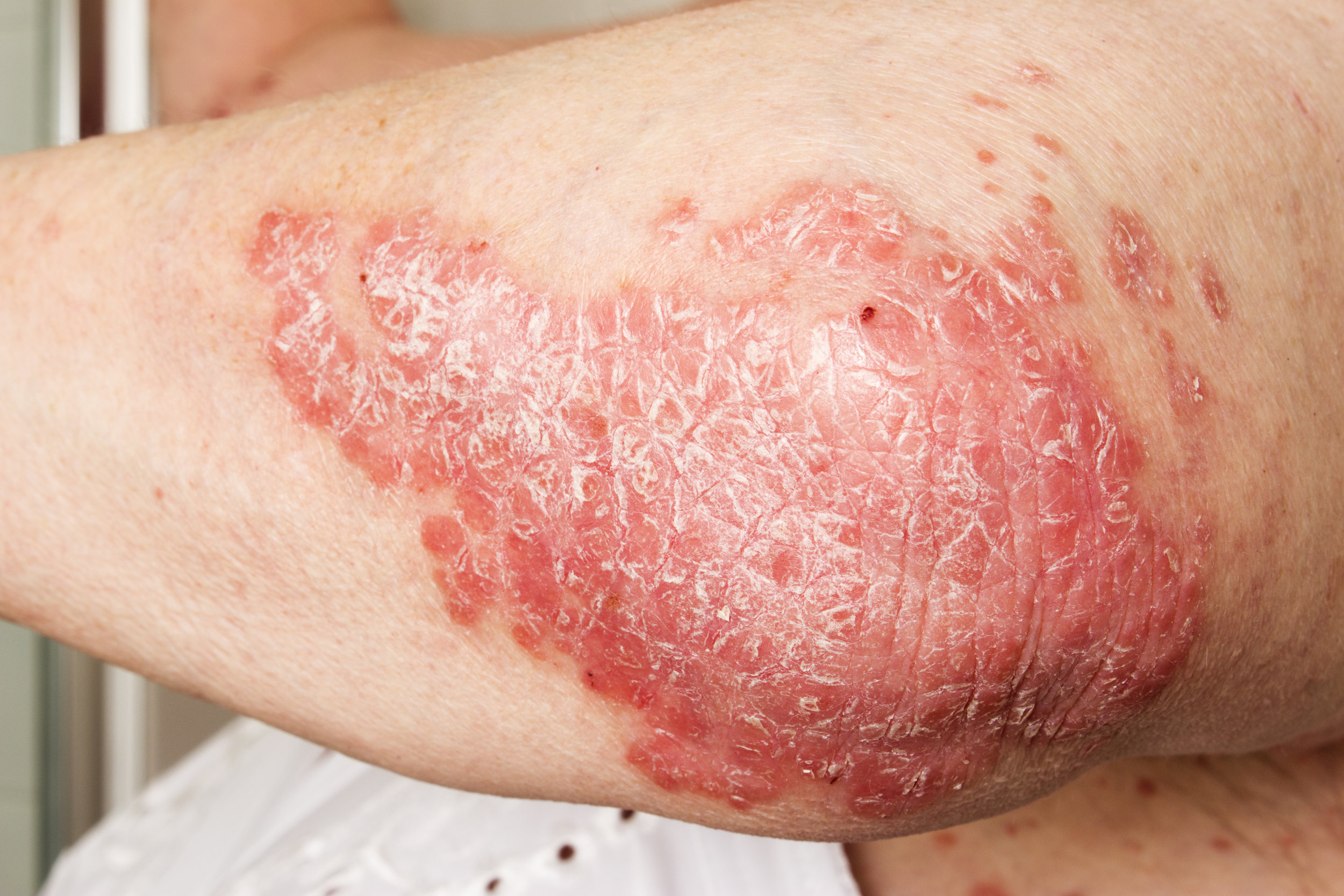 This photo pictures a patient with psoriasis on the elbow