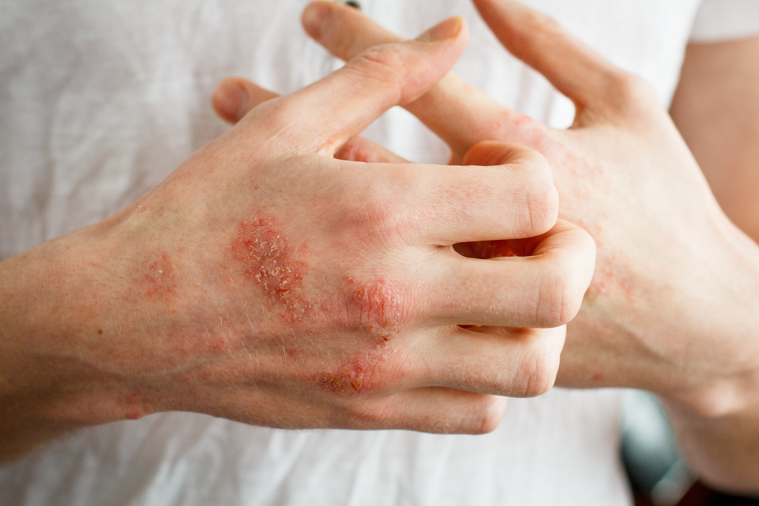 a patient itching their eczema-affected hands