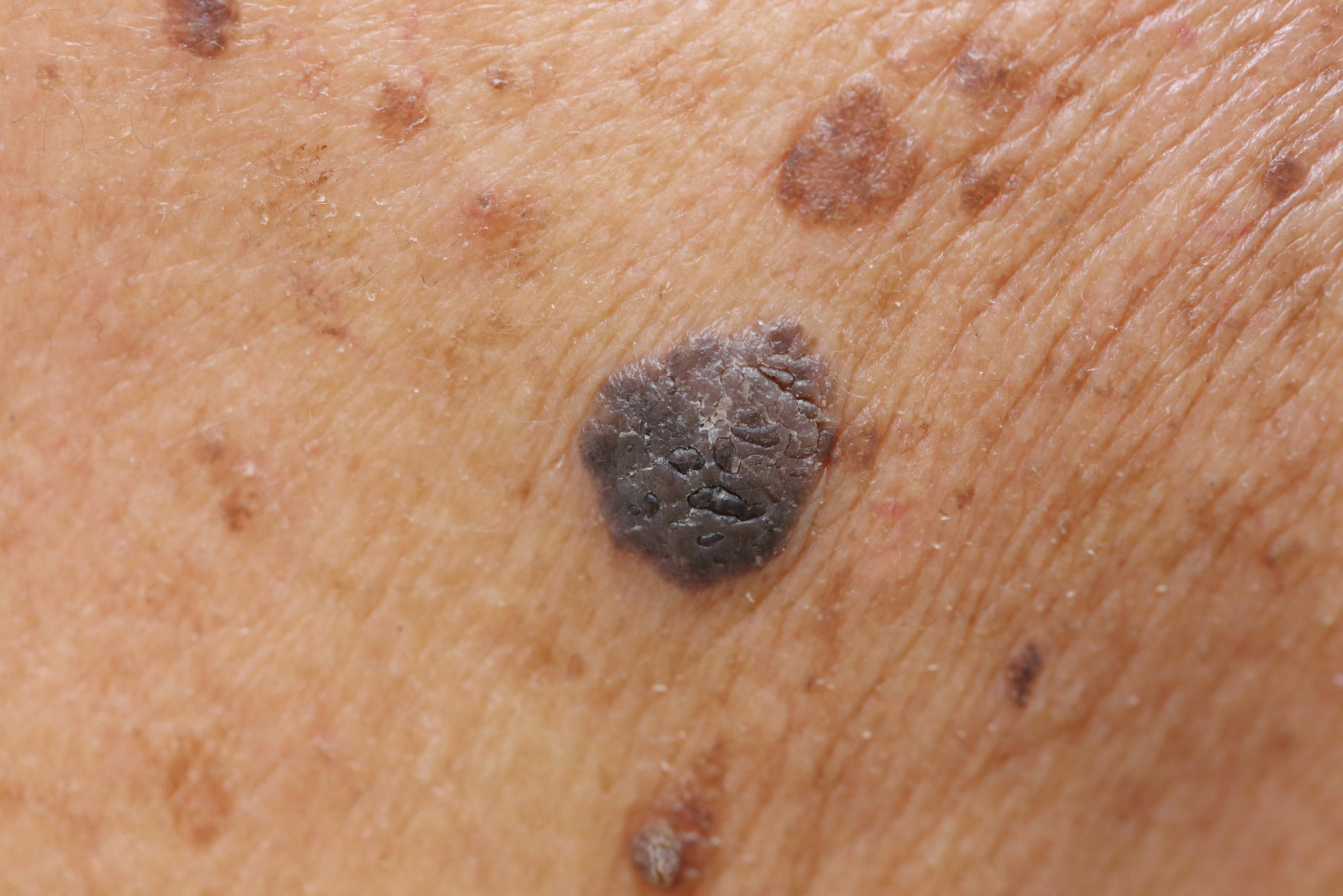 A close-up photo of a sebhorrheic keratosis on the skin