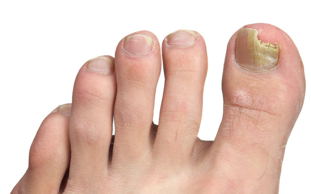 Podiatry Thickened Nails Ingrown Nails Infections