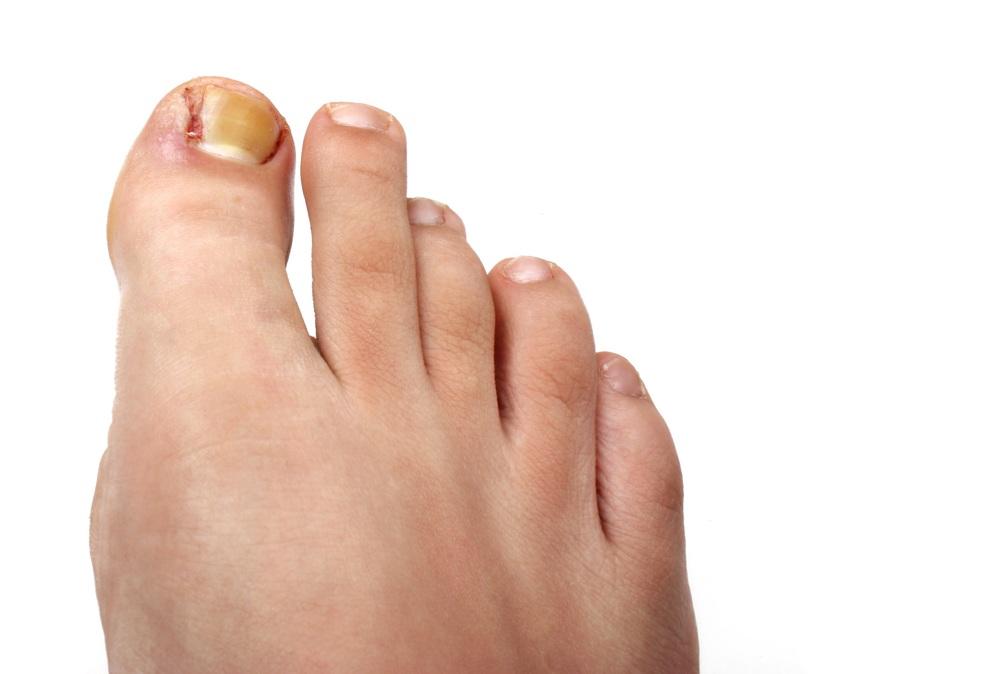 Podiatry Ingrown Nail Surgery