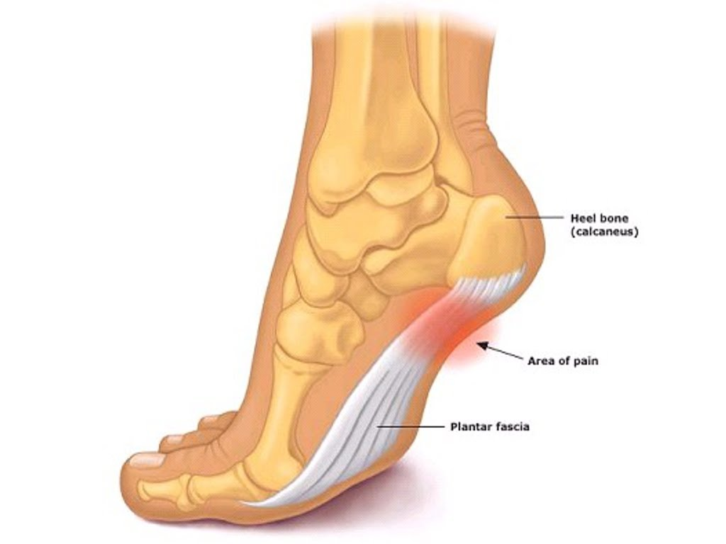 Newcastle Podiatry Plantar Fasciitis heel pain