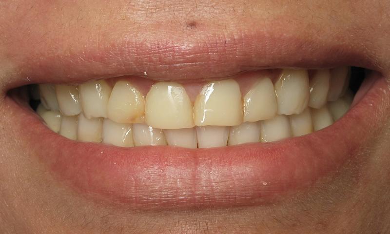 Before: Short teeth and failing resin veneers.