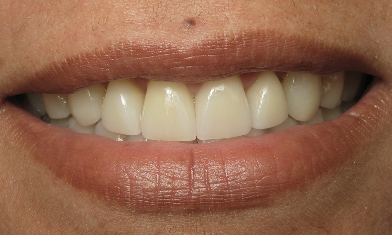 After: Periodontal surgery, 4 porcelain crowns and bonding.