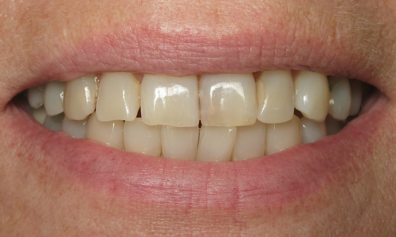 Before: Discolored and decayed upper teeth with crooked lower incisors.