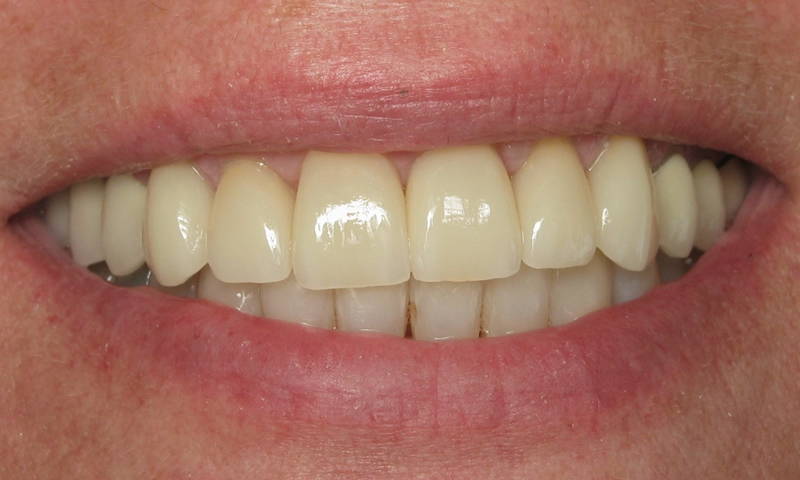 After: Porcelain crowns for the upper teeth and Cosmetic Braces for the lower incisors.