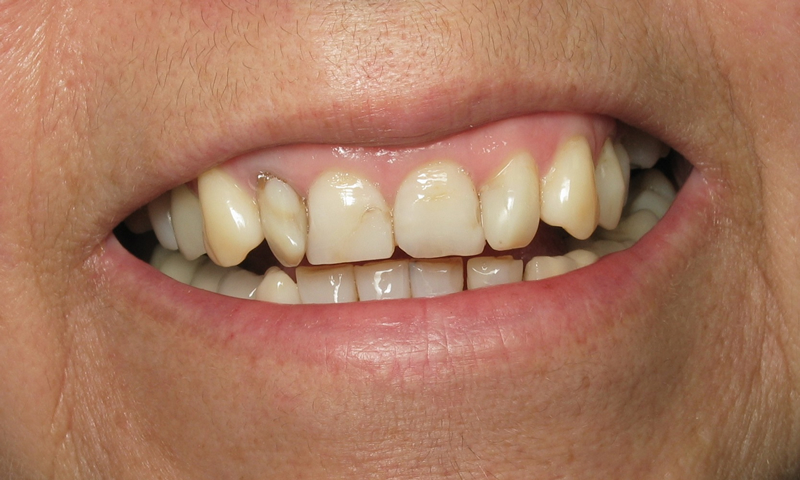 Before: Patient was unhappy about the appearance of her front teeth.