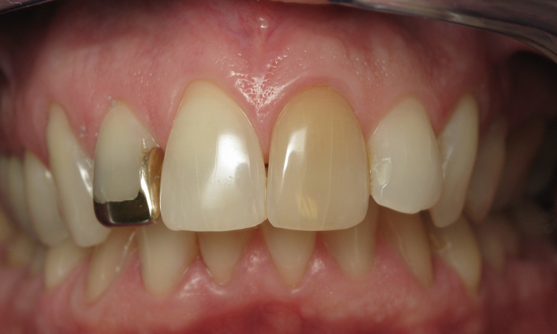 Before: Discoloration and 3/4 gold crown.