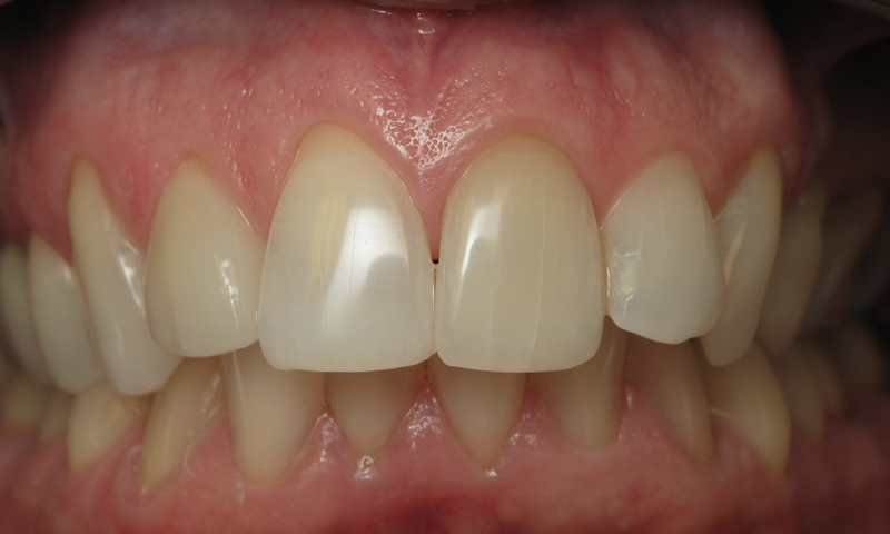 After: Teeth whitening and porcelain crown.