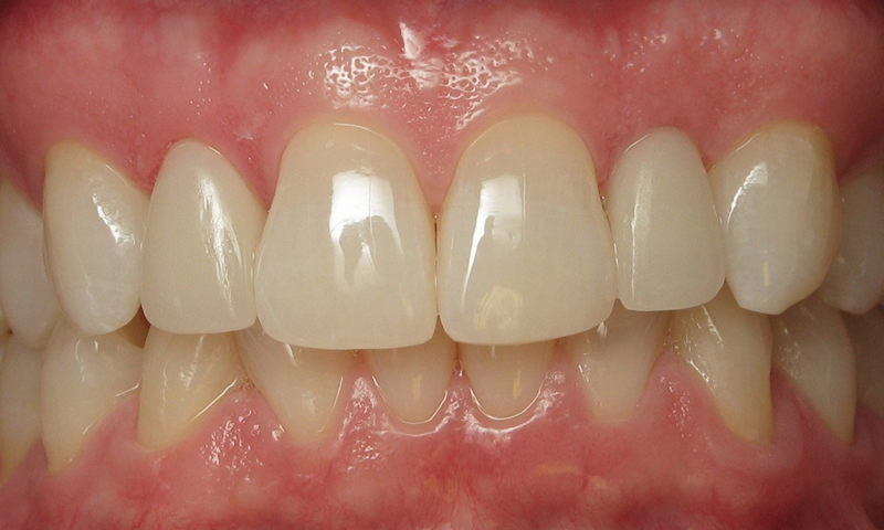 """After: Two """"No Prep"""" Veneers. No enamel was removed."""