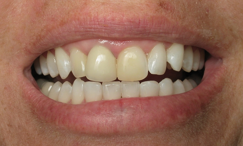 Before: Discolored, supraerupted and rotated teeth