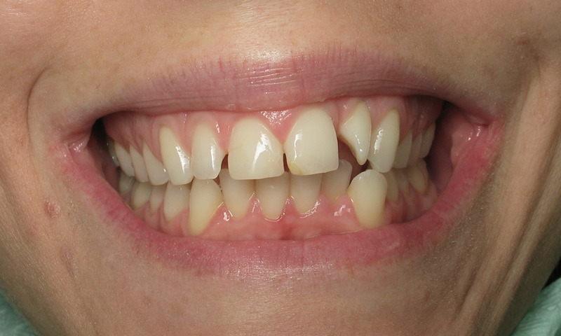 Before: Multiple cosmetic concerns with 4 months to fix them.