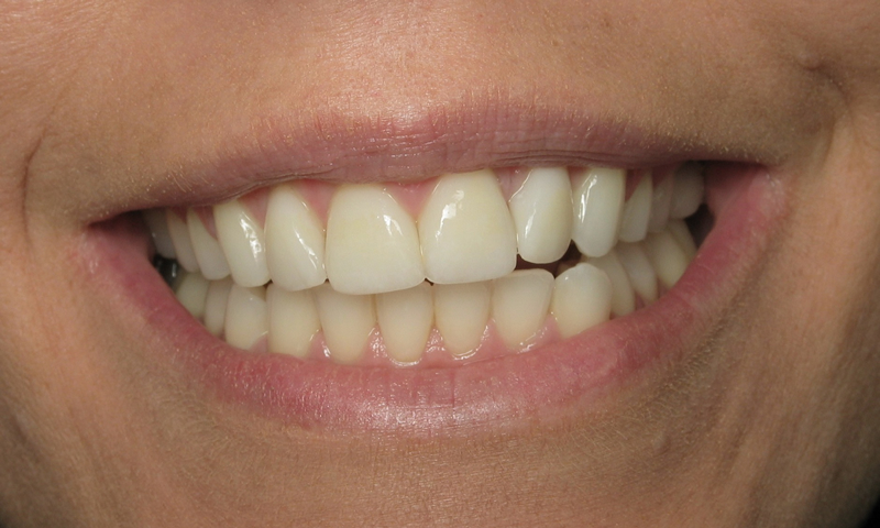 After: Cosmetic braces with 4 porcelain veneers.  4 month treatment time.