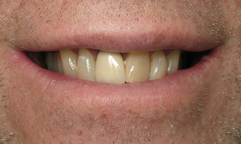 Before: Very poor shade on central incisor.