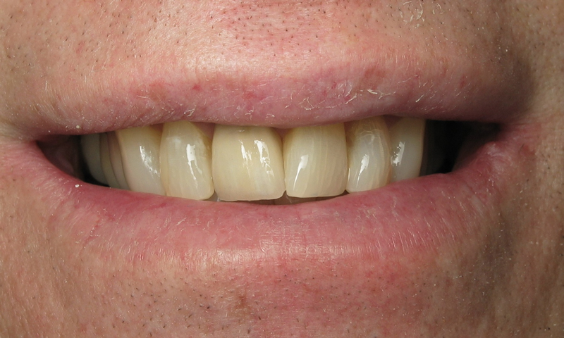 After:  Custom shade match.  One of the most difficult cosmetic challenges in dentistry requiring a very skilled dental lab.
