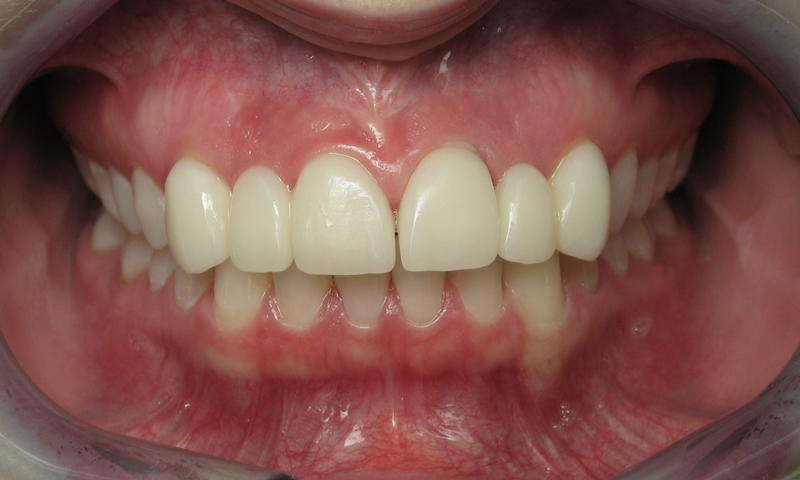 Before: Bulky, opaque crowns with a gap.