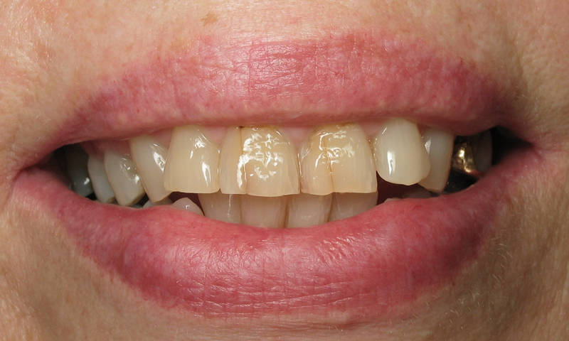 Before:  Patient was very unhappy about her smile.