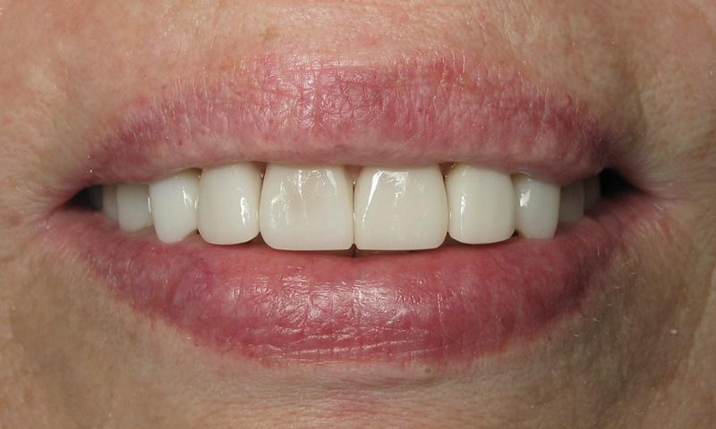 After:  Adult braces and bleaching on the lower teeth.  Veneers on the upper teeth.