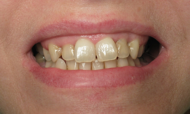 Before: Multiple cosmetic concerns. Patient was not happy with her smile.