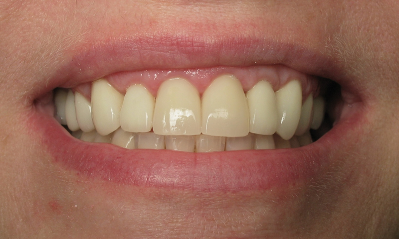 After: Cosmetic braces on the lower and porcelain crowns on the upper.