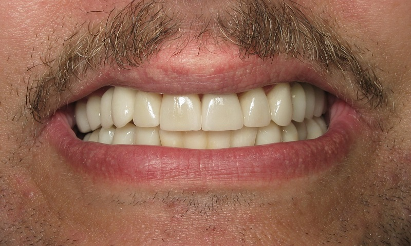 After: Multidisciplinary dentistry. Great new smile!