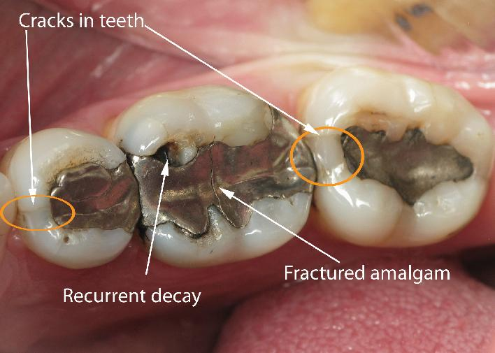708_cracks in teeth fractured amalgam recurrent decay.jpg