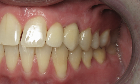 After:  Dental implant placed with abutment and crowns.