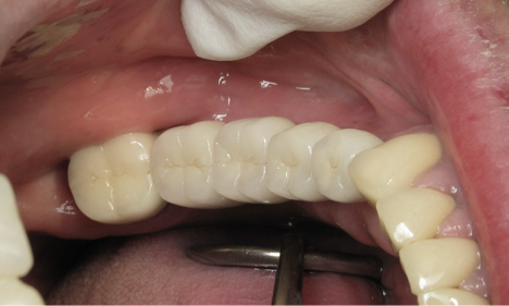 After:  4 individual dental implants placed and restored.