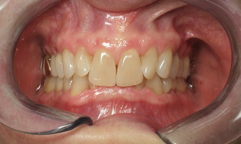 Adult Braces-Before-Extremely deep bite
