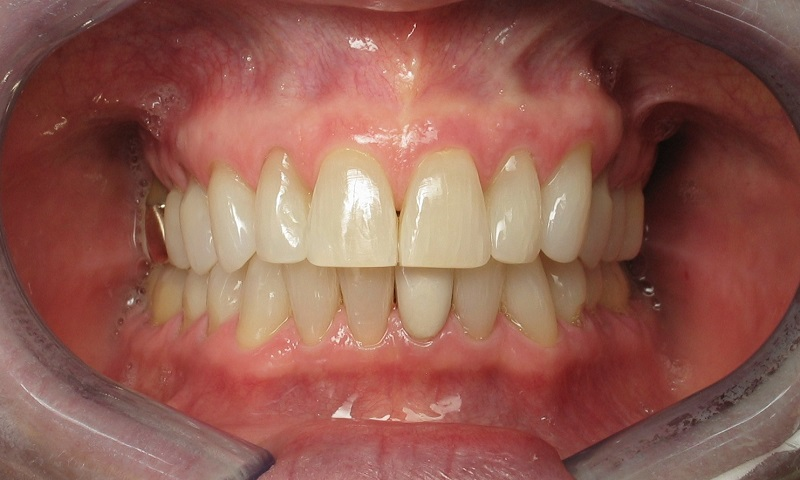 Adult Braces-After-8 months of braces and teeth whitening