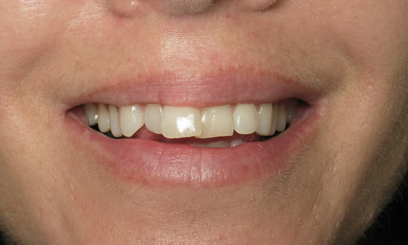 Adult Braces-Before-Crooked and crowed upper and lower teeth