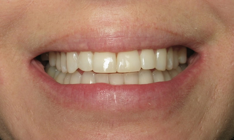 Adult Braces-After-8 months of braces with reshaping