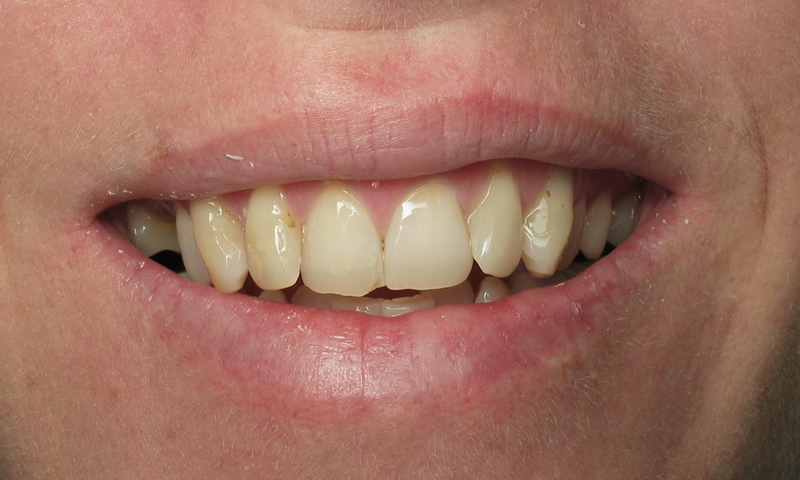 Adult Braces-Before-Chipped, worn and crooked front teeth