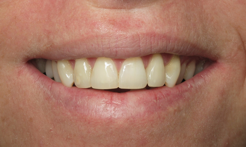 Adult Braces-After-5 months of ortho with reshaping