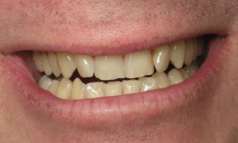 Adult Braces-Before-Crooked and chipped front teeth