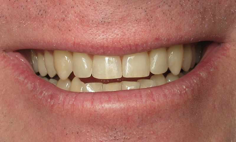 Adult Braces-After-5 Months Braces on upper teeth with reshaping