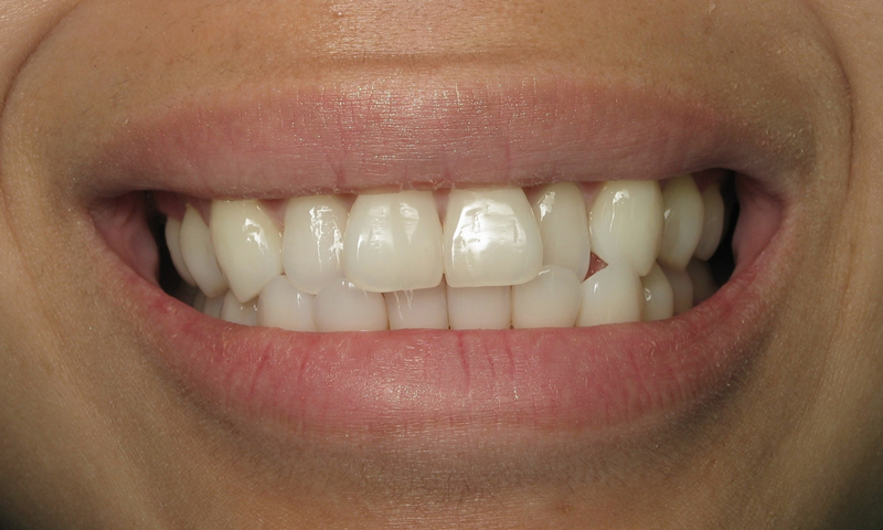 Adult Braces-Before-Crooked front teeth with a crossbite