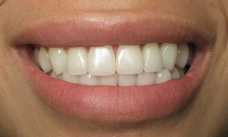 Adult Braces-After-7 months braces with bonded retainers