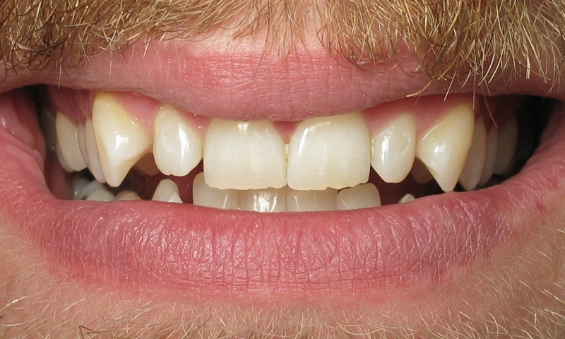 Adult Braces-Before-Crooked, crowded, and rotated teeth