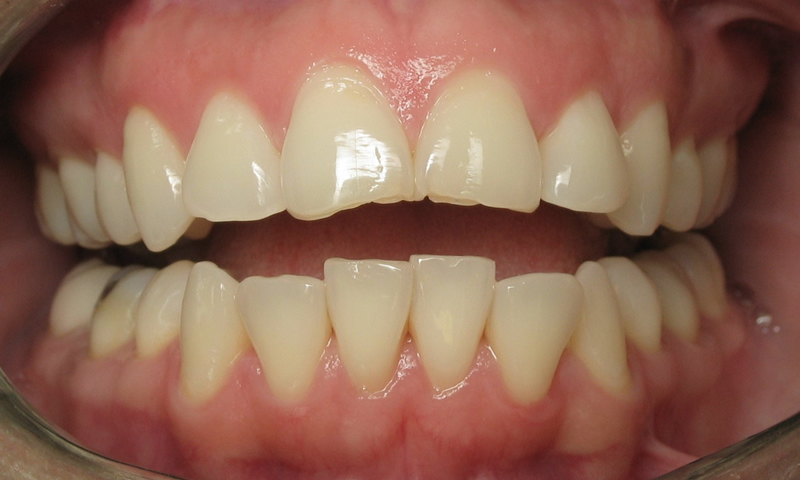 Adult Braces-Supraerupted crooked lower teeth with chipped upper teeth