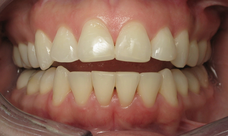 Adult Braces-3 months of ortho on lower with bonding on the upper incisors