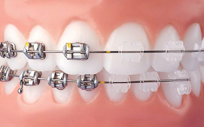 As you can see ceramic brackets are much less noticeable than metal brackets. -