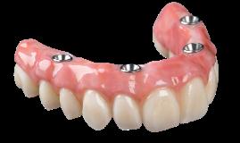 Zirconia prosthesis