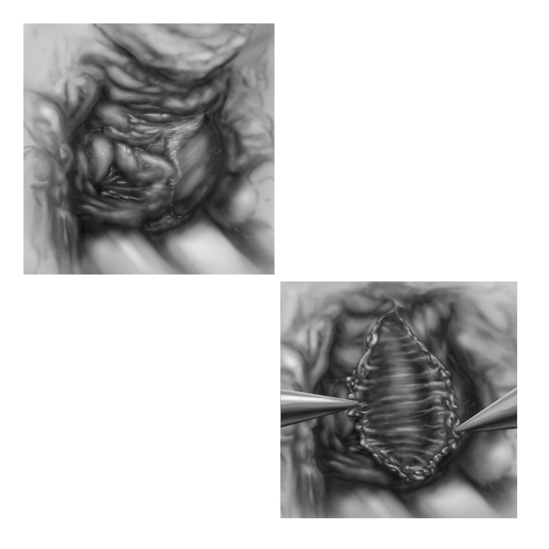 Vaginoplasty denonvilliers fascia