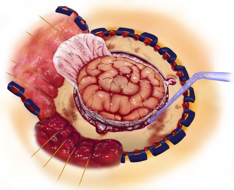 Craniotomy brain