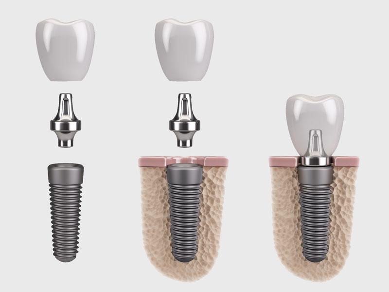 dental-implant-isolated.jpg